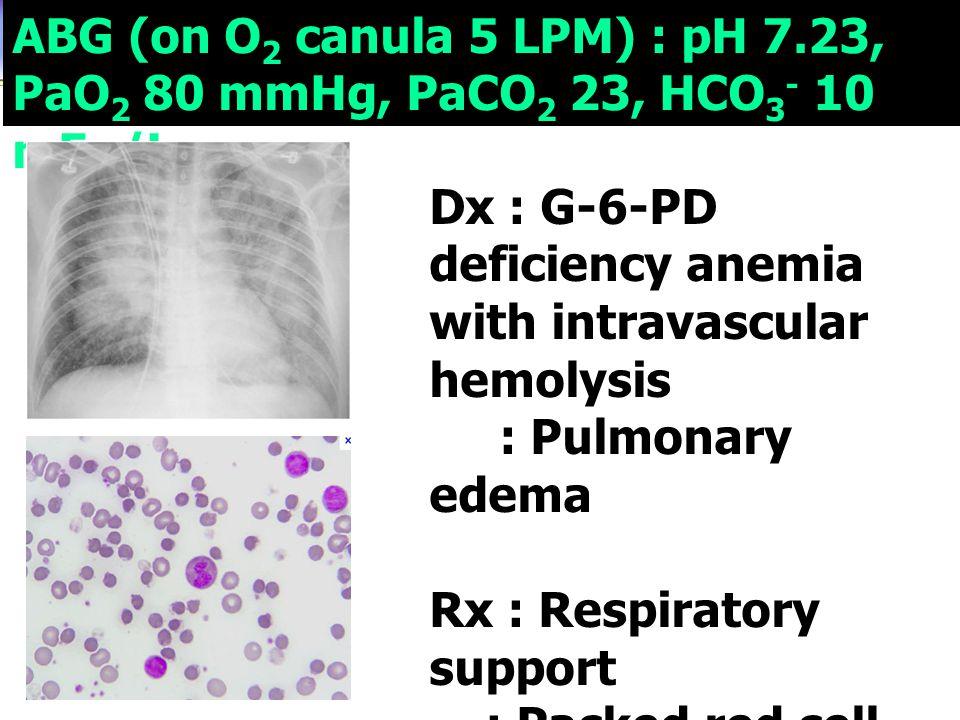ABG (on O 2 canula 5 LPM) : pH 7.23, PaO 2 80 mmHg, PaCO 2 23, HCO 3 - 10 mEq/L Dx : G-6-PD deficiency anemia with intravascular hemolysis : Pulmonary