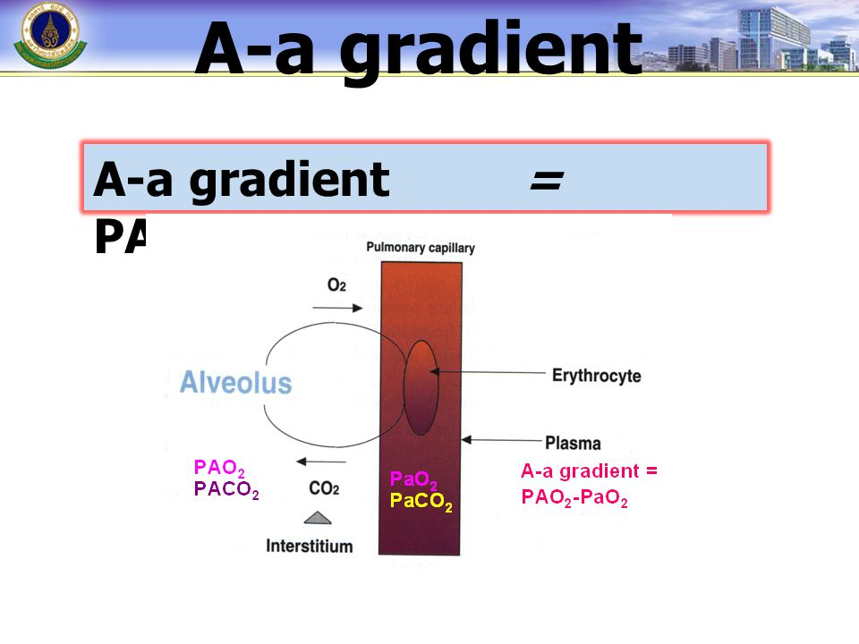 A-a gradient= PAO 2 - PaO 2 A-a gradient