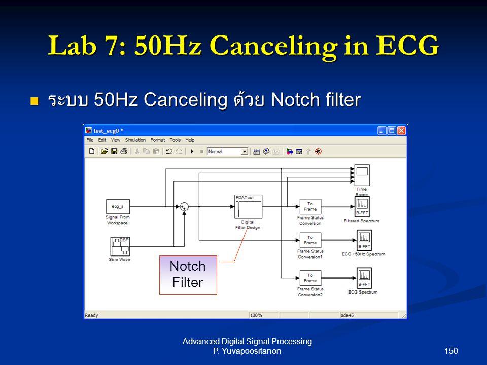 150 Advanced Digital Signal Processing P. Yuvapoositanon Lab 7: 50Hz Canceling in ECG ระบบ 50Hz Canceling ด้วย Notch filter ระบบ 50Hz Canceling ด้วย N