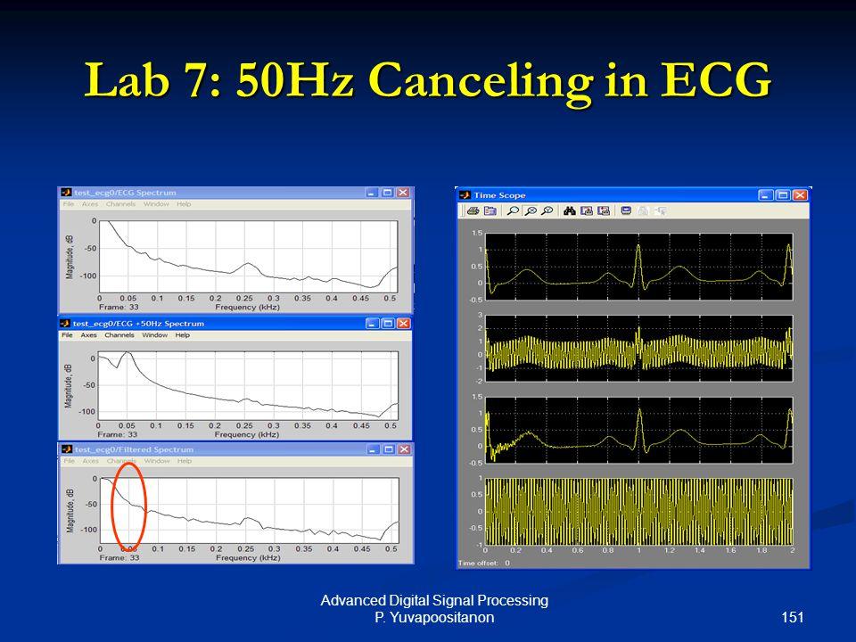 151 Advanced Digital Signal Processing P. Yuvapoositanon Lab 7: 50Hz Canceling in ECG