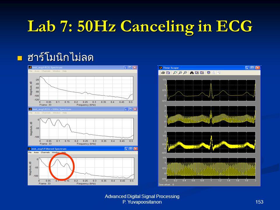 153 Advanced Digital Signal Processing P. Yuvapoositanon Lab 7: 50Hz Canceling in ECG ฮาร์โมนิกไม่ลด ฮาร์โมนิกไม่ลด