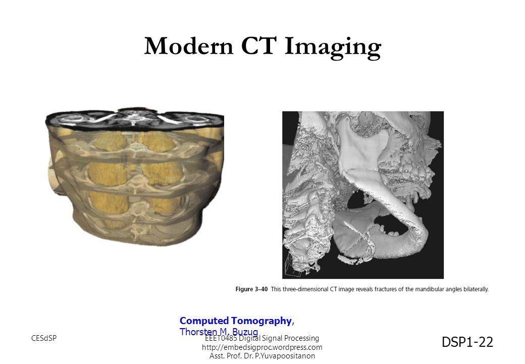 Modern CT Imaging Computed Tomography, Thorsten M. Buzug DSP1-22 CESdSPEEET0485 Digital Signal Processing http://embedsigproc.wordpress.com Asst. Prof