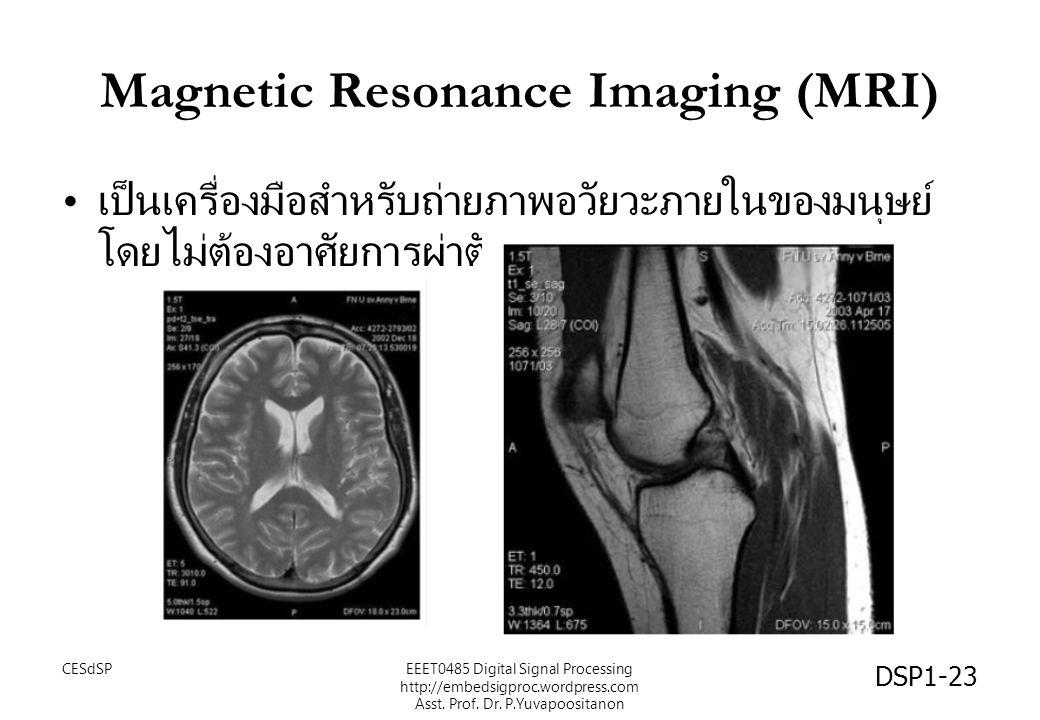 Magnetic Resonance Imaging (MRI) เป็นเครื่องมือสำหรับถ่ายภาพอวัยวะภายในของมนุษย์ โดยไม่ต้องอาศัยการผ่าตัด DSP1-23 CESdSPEEET0485 Digital Signal Proces