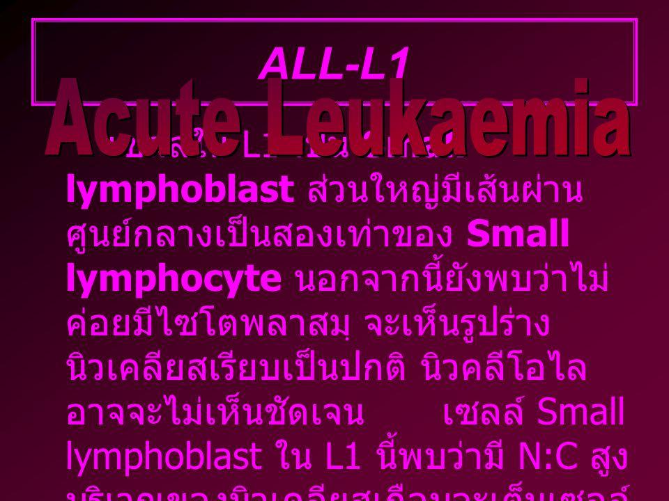 ALL-L1 เซลล์ใน L1 เป็น Small lymphoblast ส่วนใหญ่มีเส้นผ่าน ศูนย์กลางเป็นสองเท่าของ Small lymphocyte นอกจากนี้ยังพบว่าไม่ ค่อยมีไซโตพลาสมฺ จะเห็นรูปร่าง นิวเคลียสเรียบเป็นปกติ นิวคลีโอไล อาจจะไม่เห็นชัดเจนเซลล์ Small lymphoblast ใน L1 นี้พบว่ามี N:C สูง บริเวณของนิวเคลียสเกือบจะเต็มเซลล์ และ ขนาดของนิวเคลียสมักจะเท่าๆ กัน