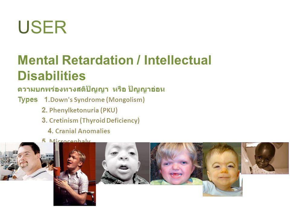 USER Mental Retardation / Intellectual Disabilities ความบกพร่องทางสติปัญญา หรือ ปัญญาอ่อน Types 1. Down's Syndrome (Mongolism) 2. Phenylketonuria (PKU