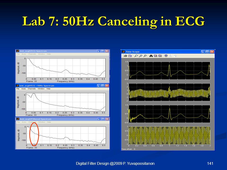 141Digital Filter Design @2009 P. Yuvapoositanon Lab 7: 50Hz Canceling in ECG