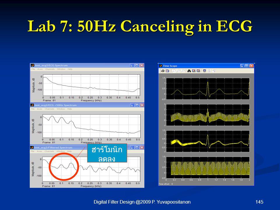 145Digital Filter Design @2009 P. Yuvapoositanon Lab 7: 50Hz Canceling in ECG ฮาร์โมนิก ลดลง