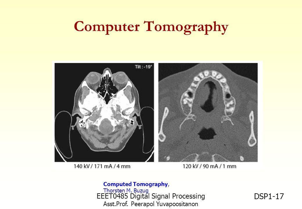 EEET0485 Digital Signal Processing Asst.Prof. Peerapol Yuvapoositanon DSP1-17 Computer Tomography Computed Tomography, Thorsten M. Buzug