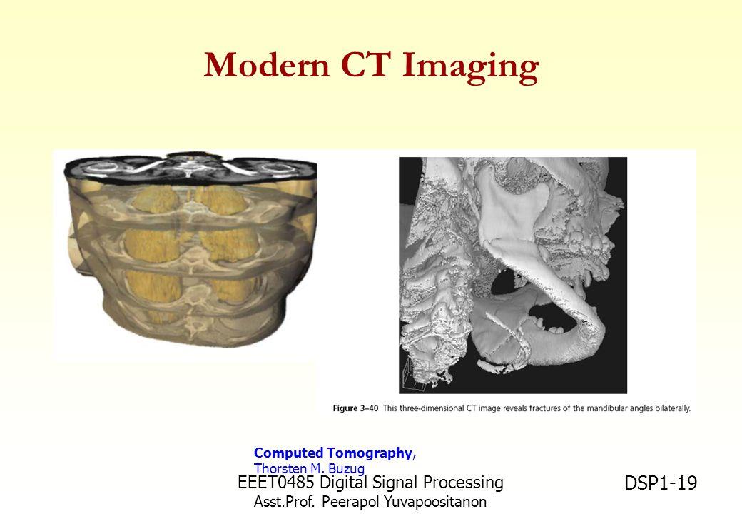EEET0485 Digital Signal Processing Asst.Prof. Peerapol Yuvapoositanon DSP1-19 Modern CT Imaging Computed Tomography, Thorsten M. Buzug