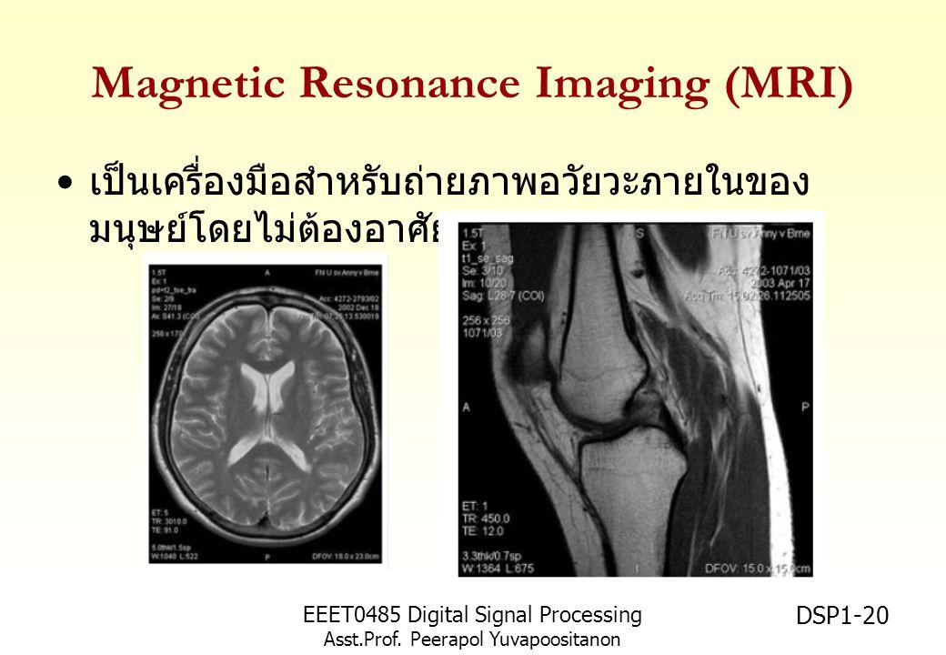 EEET0485 Digital Signal Processing Asst.Prof. Peerapol Yuvapoositanon DSP1-20 Magnetic Resonance Imaging (MRI) เป็นเครื่องมือสำหรับถ่ายภาพอวัยวะภายในข