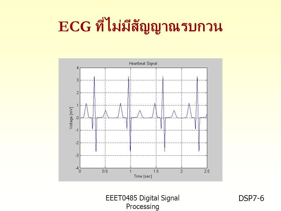 EEET0485 Digital Signal Processing Asst.Prof. Peerapol Yuvapoositanon DSP7-6 ECG ที่ไม่มีสัญญาณรบกวน