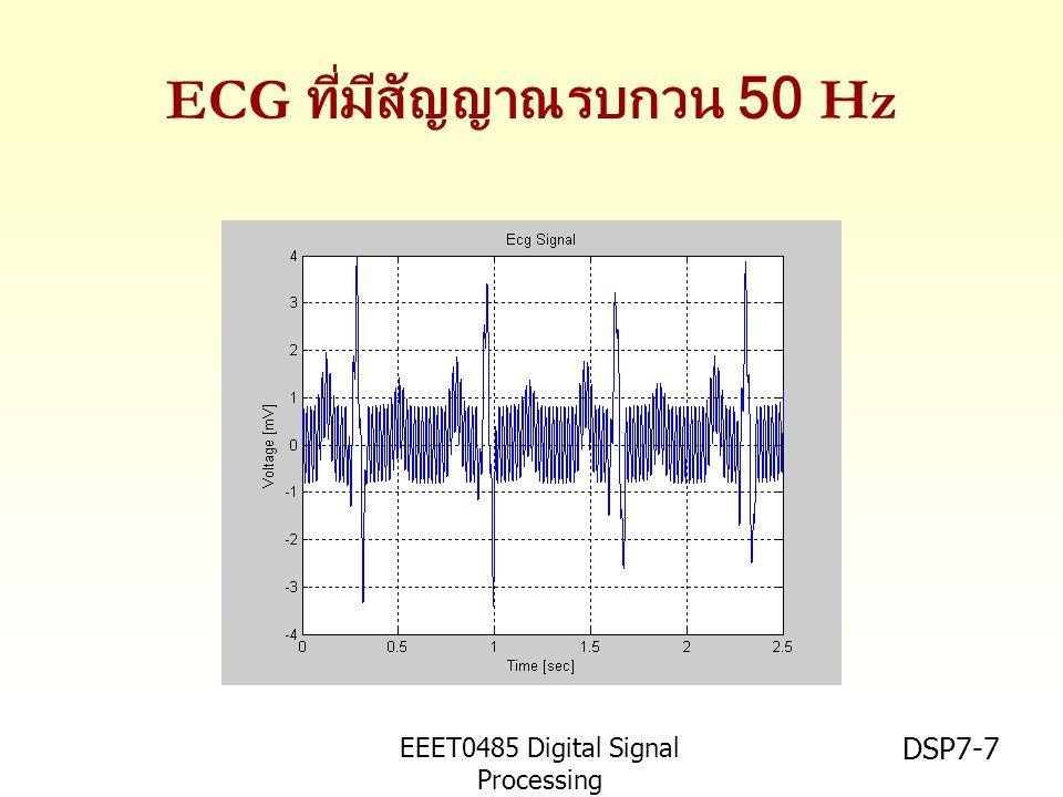 EEET0485 Digital Signal Processing Asst.Prof. Peerapol Yuvapoositanon DSP7-7 ECG ที่มีสัญญาณรบกวน 50 Hz