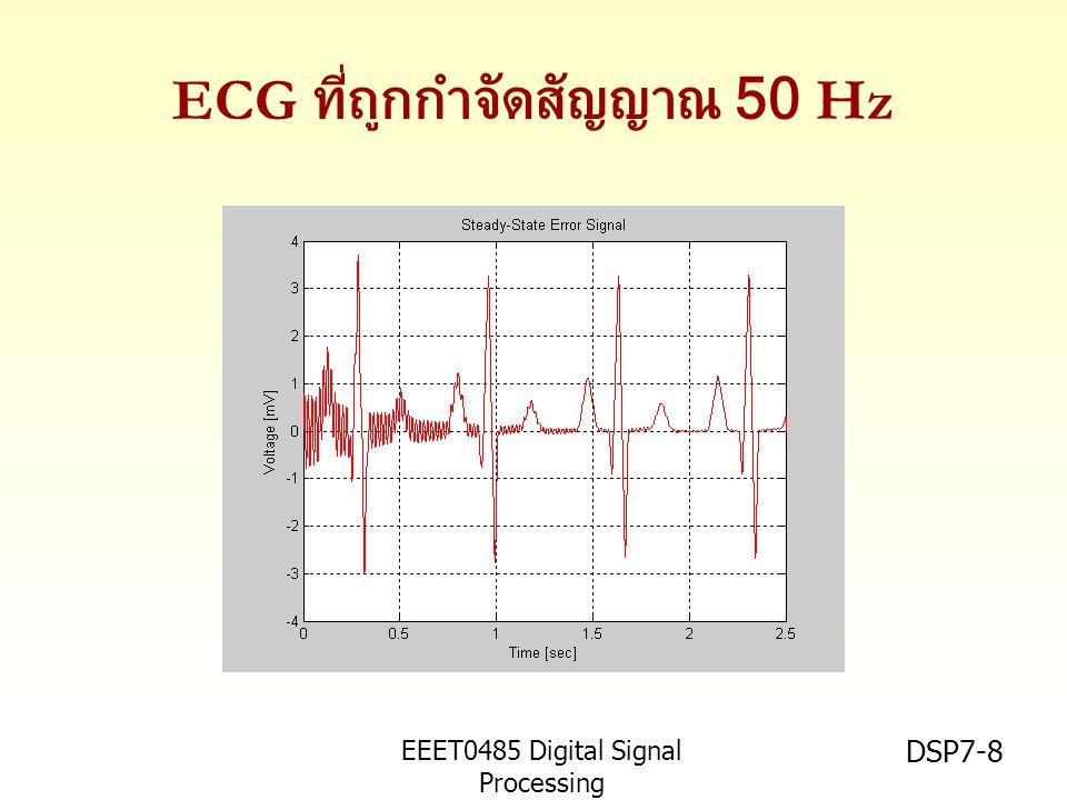 EEET0485 Digital Signal Processing Asst.Prof. Peerapol Yuvapoositanon DSP7-8 ECG ที่ถูกกำจัดสัญญาณ 50 Hz