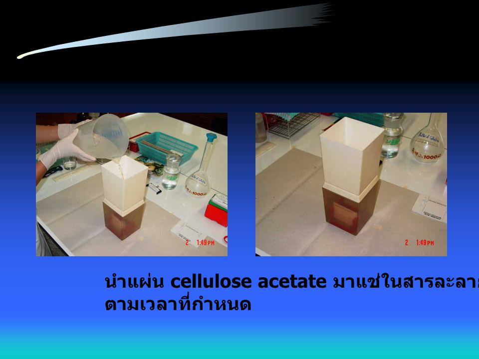 นำแผ่น cellulose acetate มาแช่ในสารละลายบัฟเฟอร์ ตามเวลาที่กำหนด