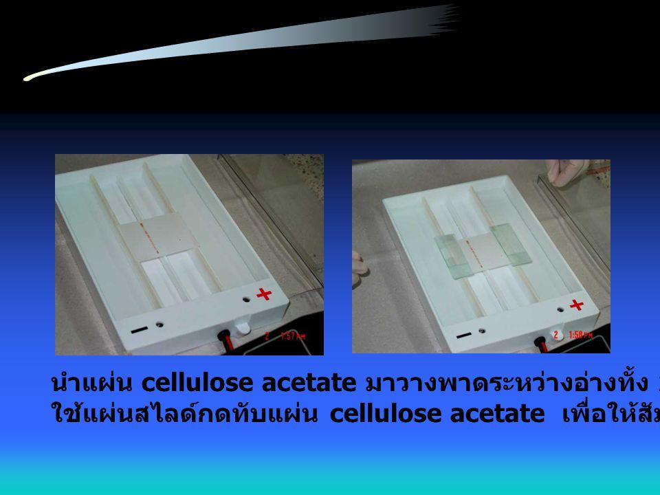 นำแผ่น cellulose acetate มาวางพาดระหว่างอ่างทั้ง 2 โดยวางคว่ำหน้า ใช้แผ่นสไลด์กดทับแผ่น cellulose acetate เพื่อให้สัมผัสกับกระดาษกรอง