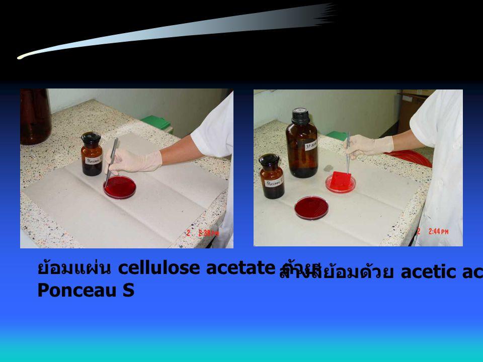ย้อมแผ่น cellulose acetate ด้วย Ponceau S ล้างสีย้อมด้วย acetic acid
