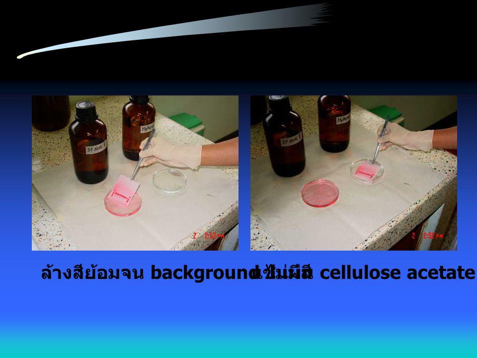 ล้างสีย้อมจน background ไม่มีสีแช่แผ่น cellulose acetate ใน methanol