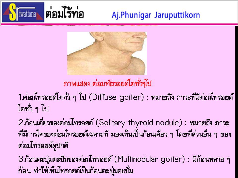 ภาพแสดง ต่อมทัยรอยด์โตทั่วๆไป 1.ต่อมไทรอยด์โตทั่ว ๆ ไป (Diffuse goiter) : หมายถึง ภาวะที่มีต่อมไทรอยด์ โตทั่ว ๆ ไป 2.ก้อนเดี่ยวของต่อมไทรอยด์ (Solitary thyroid nodule) : หมายถึง ภาวะ ที่มีการโตของต่อมไทรอยด์เฉพาะที่ มองเห็นเป็นก้อนเดี่ยว ๆ โดยที่ส่วนอื่น ๆ ของ ต่อมไทรอยด์ดูปกติ 3.ก้อนตะปุ่มตะปั่มของต่อมไทรอยด์ (Multinodular goiter) : มีก้อนหลาย ๆ ก้อน ทำให้เห็นไทรอยด์เป็นก้อนตะปุ่มตะปั่ม