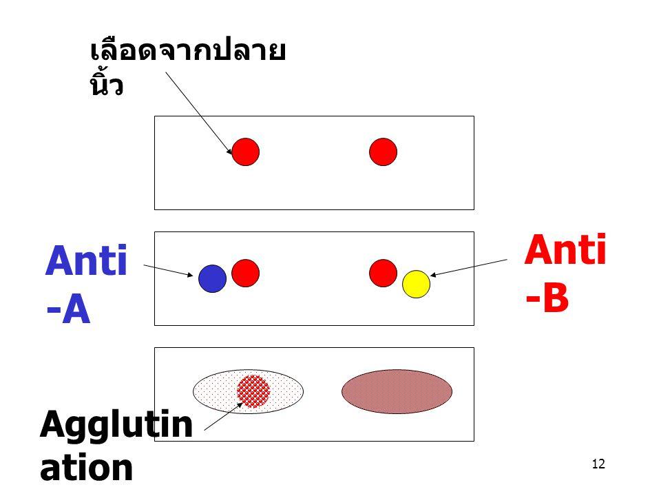 12 เลือดจากปลาย นิ้ว Anti -A Anti -B Agglutin ation