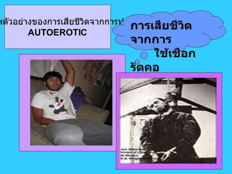 ภาพตัวอย่างของการเสียชีวิตจากการทำ AUTOEROTIC การเสียชีวิต จากการ ใช้เชือก รัดคอ
