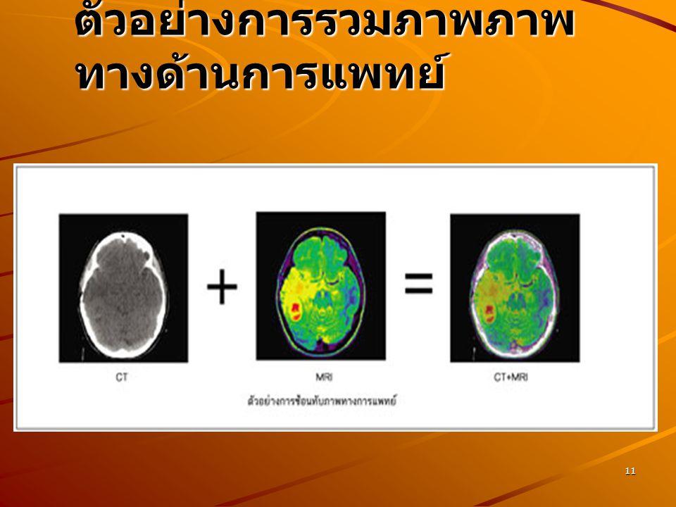 11 ตัวอย่างการรวมภาพภาพ ทางด้านการแพทย์