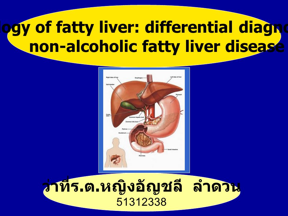 Fatty liver disease: non-alcoholic fatty liver disease and alcoholic liver disease