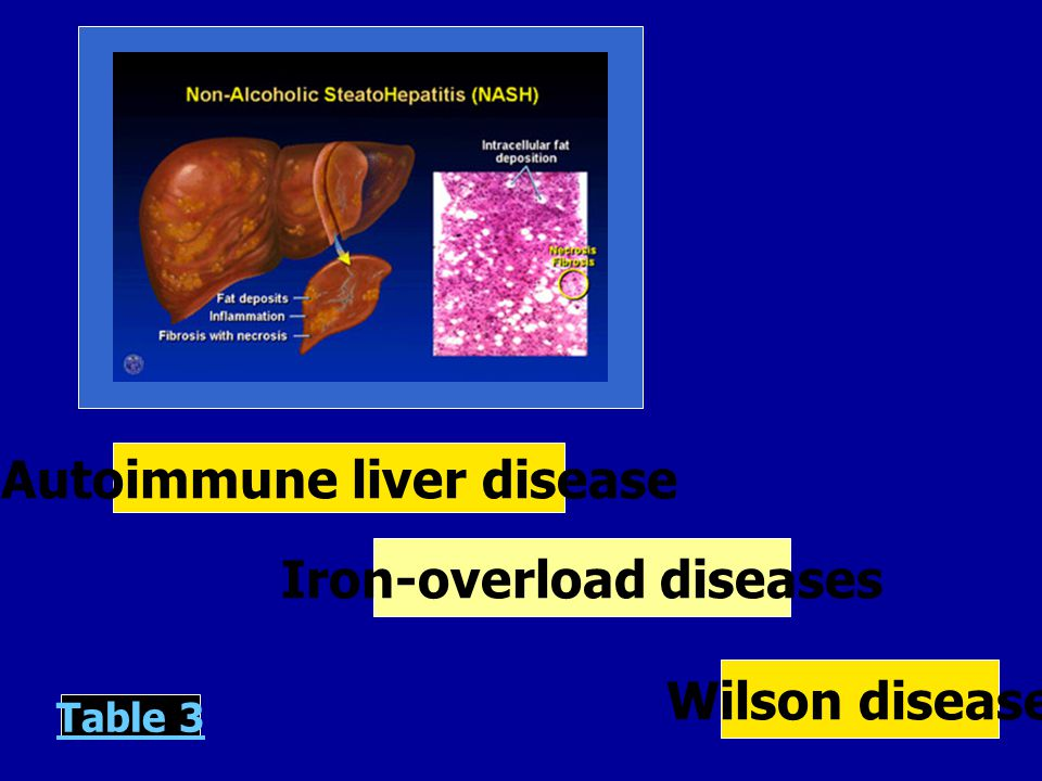 Autoimmune liver disease Iron-overload diseases Wilson disease Table 3