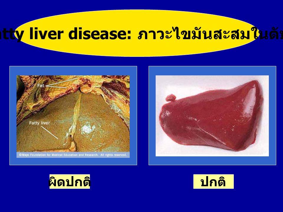 Fatty liver disease: ภาวะไขมันสะสมในตับ สีตับปกติ ปกติผิดปกติ