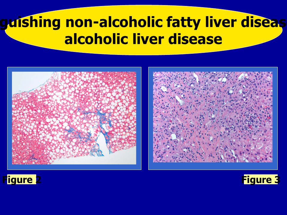 Figure 4 Grading and staging non-alcoholic fatty liver disease