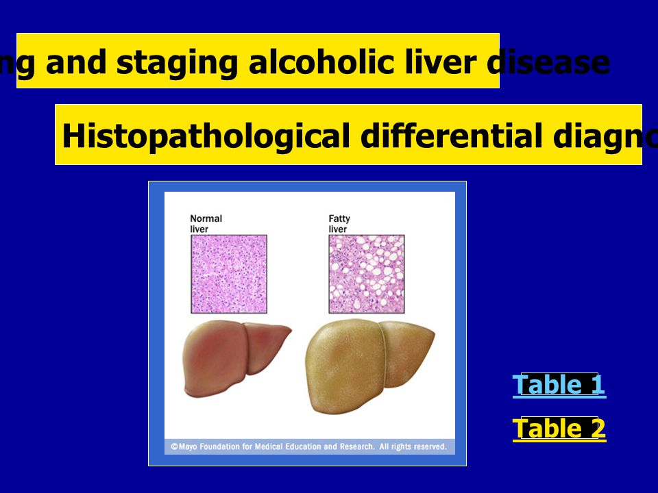 Grading and staging alcoholic liver disease Histopathological differential diagnosis of fatty liver disease Table 1 Table 2