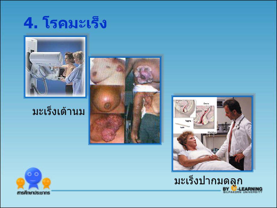 4. โรคมะเร็ง มะเร็งเต้านม มะเร็งปากมดลูก
