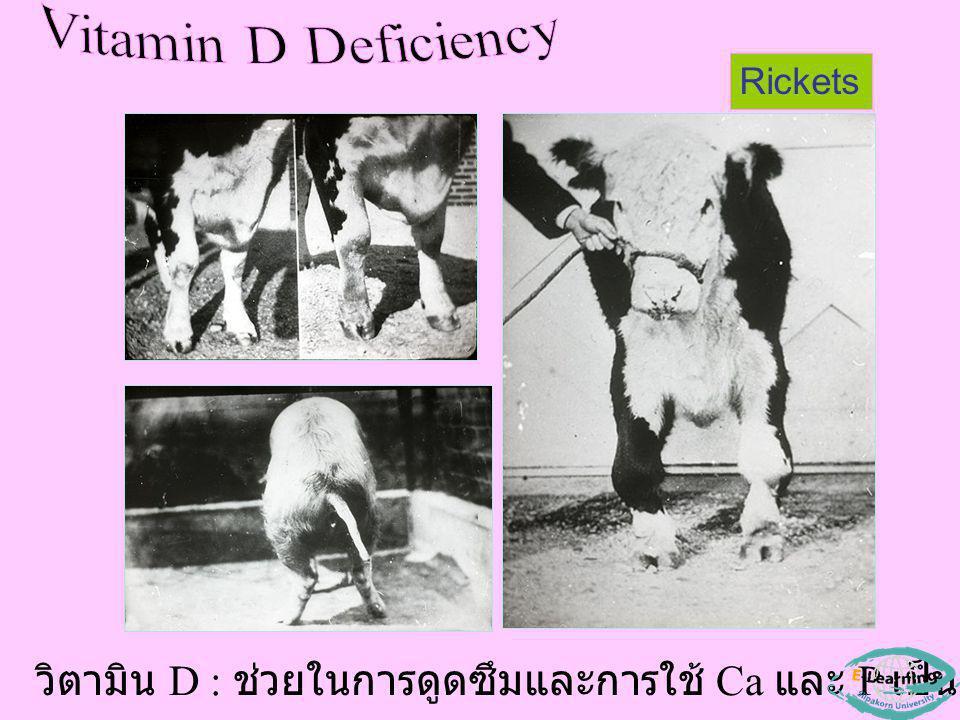 Rickets วิตามิน D : ช่วยในการดูดซึมและการใช้ Ca และ P เป็นองค์ประกอบกระดูก