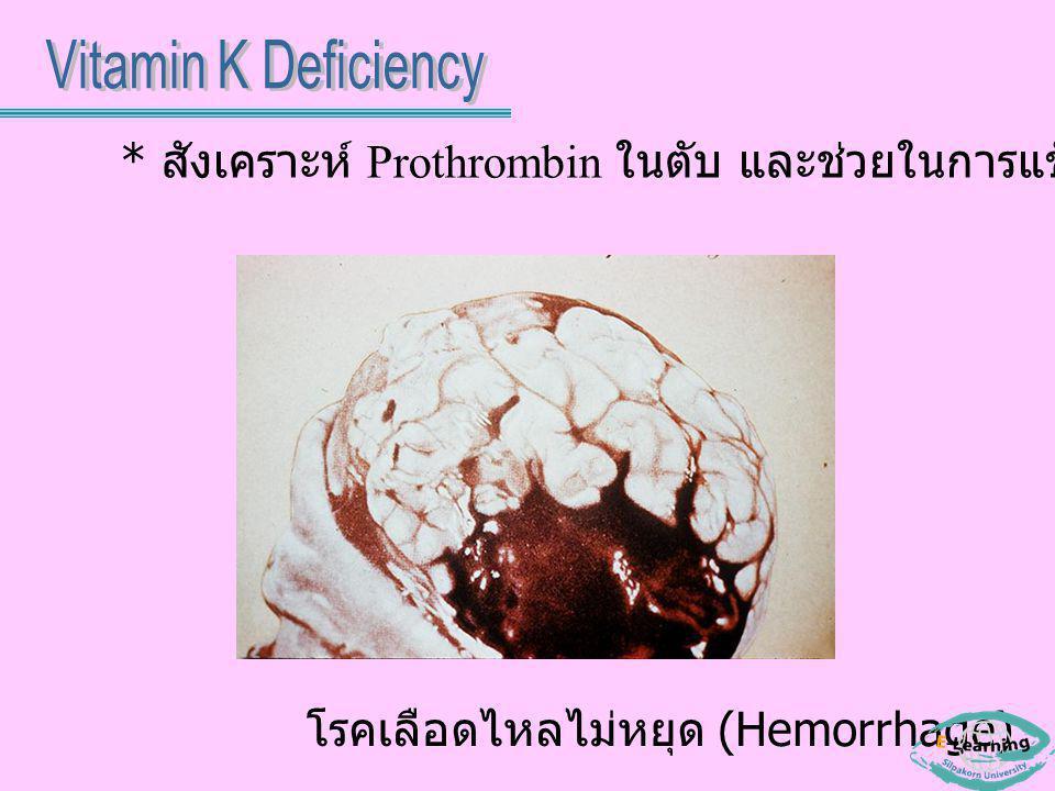 โรคเลือดไหลไม่หยุด (Hemorrhage) * สังเคราะห์ Prothrombin ในตับ และช่วยในการแข็งตัวของเลือด