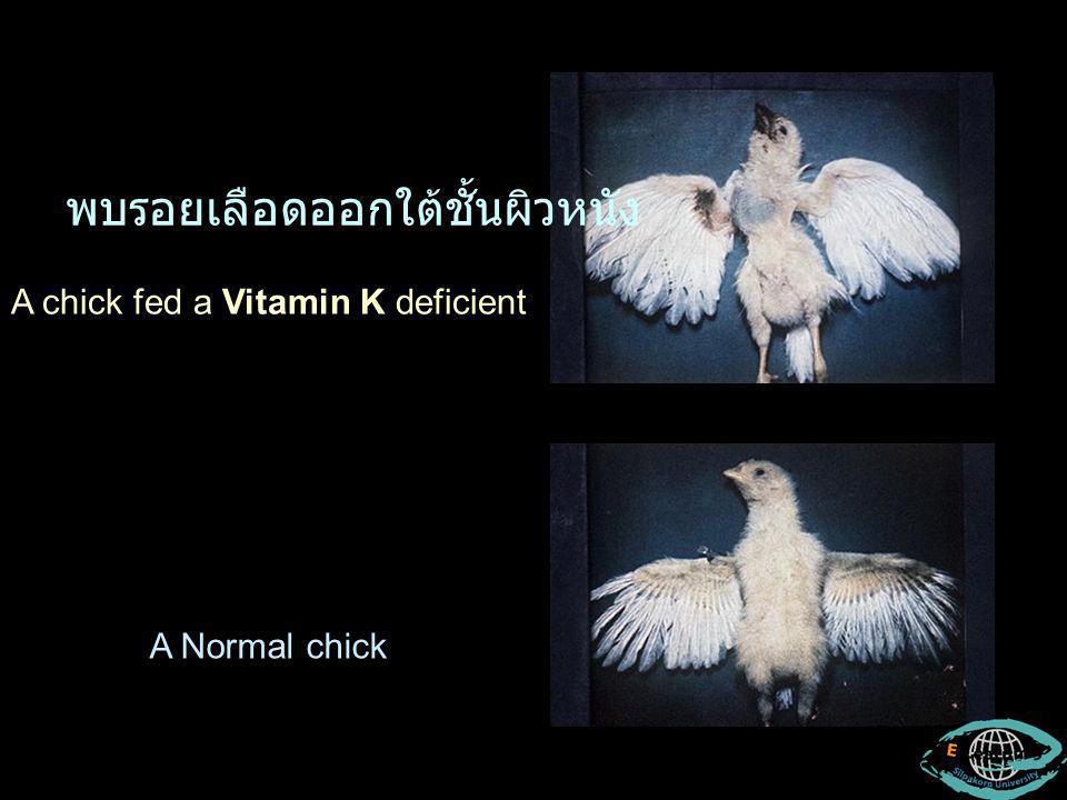 A chick fed a Vitamin K deficient A Normal chick พบรอยเลือดออกใต้ชั้นผิวหนัง