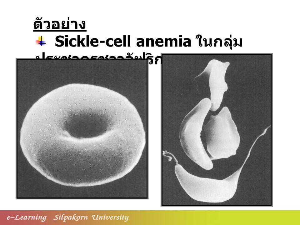 Sickle-cell anemia ในกลุ่ม ประชากรชาวอัฟริกา ตัวอย่าง