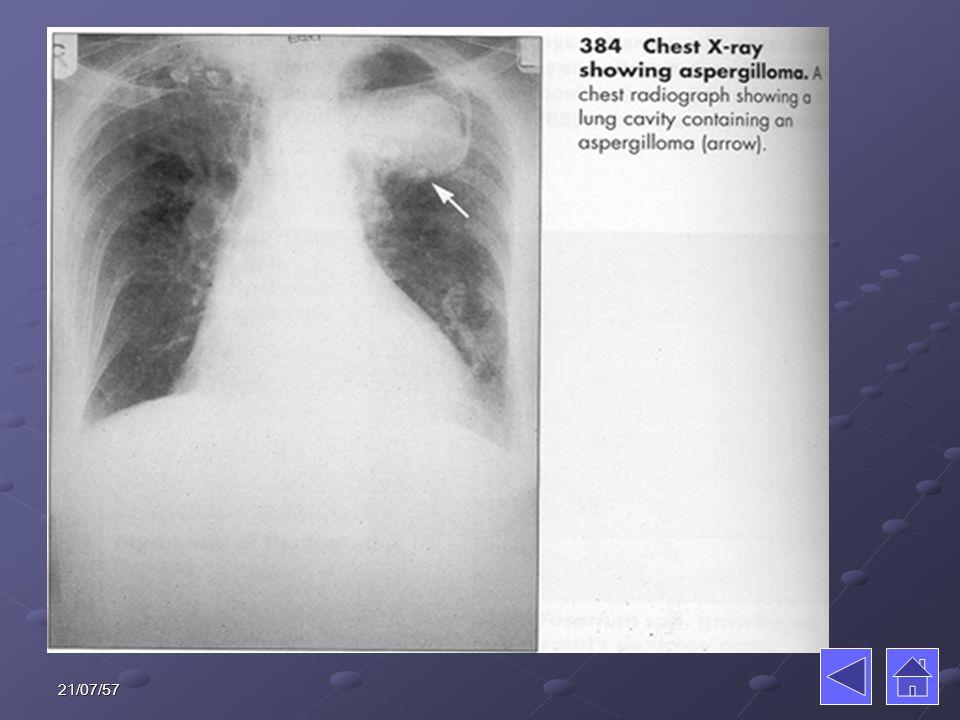 โรคจากอาหารที่มี เชื้อไวรัส ตับอักเสบ ตับอักเสบตับอักเสบ โปลิโอ โปลิโอโปลิโอ 21/07/57