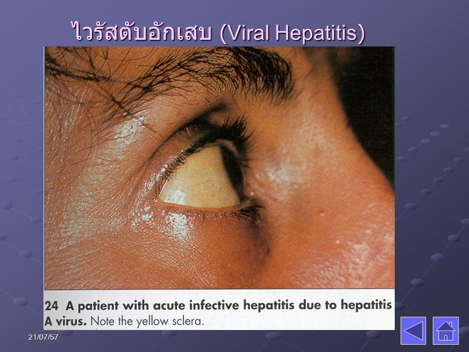 โรคโปลิโอ (Poliomyelitis) ละอองไอจาม อาหารเปื้อนอุจจาระ ละอองไอจาม อาหารเปื้อนอุจจาระ อาจไม่มีอาการ แต่แพร่เชื้อ อาจไม่มีอาการ แต่แพร่เชื้อ อาการไข้เล็กน้อย เจ็บคอ ปวดศีรษะ อาเจียน บางรายเยื่อหุ้มสมองอักเสบหรือ อัมพาตได้ อาการไข้เล็กน้อย เจ็บคอ ปวดศีรษะ อาเจียน บางรายเยื่อหุ้มสมองอักเสบหรือ อัมพาตได้ อายุ 2 เดือน ควรได้รับวัคซีน 3 เข็ม (เดือนละเข็ม) ป้องกันได้ถาวร ปัจจุบันใช้ หยอดทางปาก อายุ 2 เดือน ควรได้รับวัคซีน 3 เข็ม (เดือนละเข็ม) ป้องกันได้ถาวร ปัจจุบันใช้ หยอดทางปาก 21/07/57