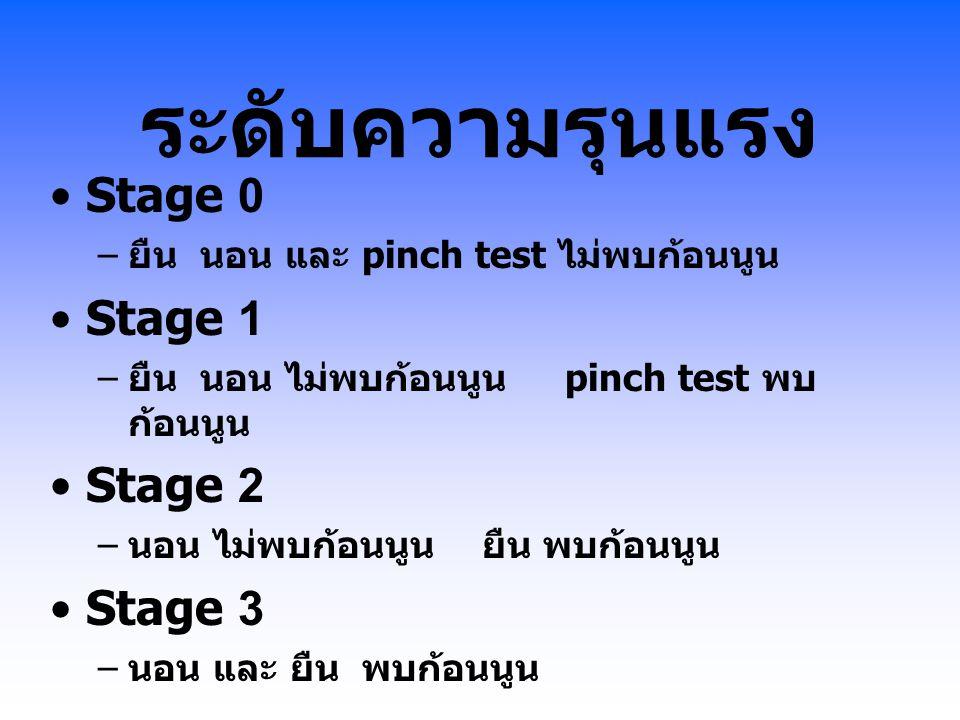 ระดับความรุนแรง Stage 0 – ยืน นอน และ pinch test ไม่พบก้อนนูน Stage 1 – ยืน นอน ไม่พบก้อนนูน pinch test พบ ก้อนนูน Stage 2 – นอน ไม่พบก้อนนูน ยืน พบก้