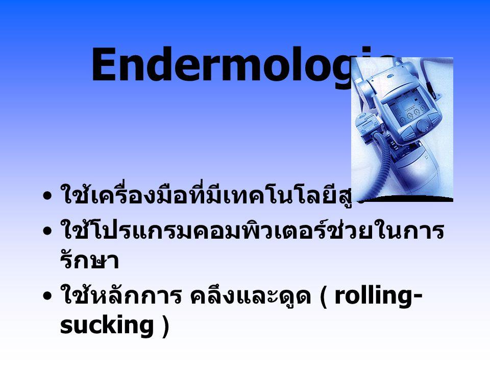 Endermologie ใช้เครื่องมือที่มีเทคโนโลยีสูง ใช้โปรแกรมคอมพิวเตอร์ช่วยในการ รักษา ใช้หลักการ คลึงและดูด ( rolling- sucking )