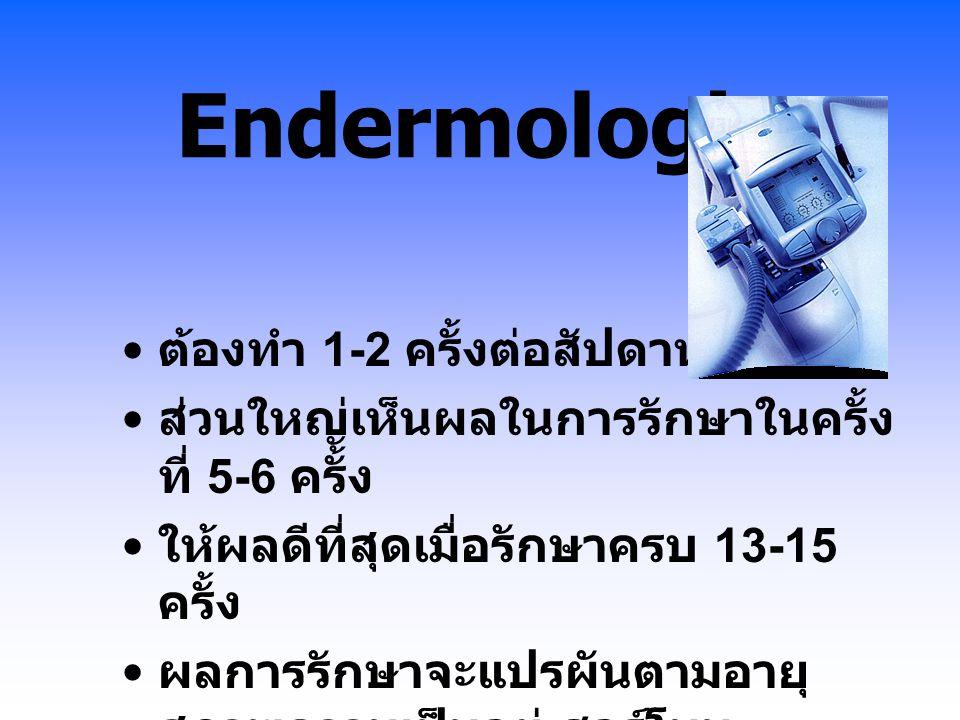 Endermologie ต้องทำ 1-2 ครั้งต่อสัปดาห์ ส่วนใหญ่เห็นผลในการรักษาในครั้ง ที่ 5-6 ครั้ง ให้ผลดีที่สุดเมื่อรักษาครบ 13-15 ครั้ง ผลการรักษาจะแปรผันตามอายุ
