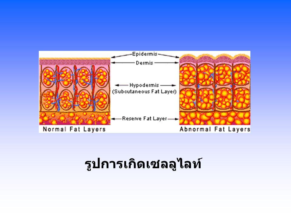Endermologie ต้องทำ 1-2 ครั้งต่อสัปดาห์ ส่วนใหญ่เห็นผลในการรักษาในครั้ง ที่ 5-6 ครั้ง ให้ผลดีที่สุดเมื่อรักษาครบ 13-15 ครั้ง ผลการรักษาจะแปรผันตามอายุ สภาพความเป็นอยู่ ฮอร์โมน