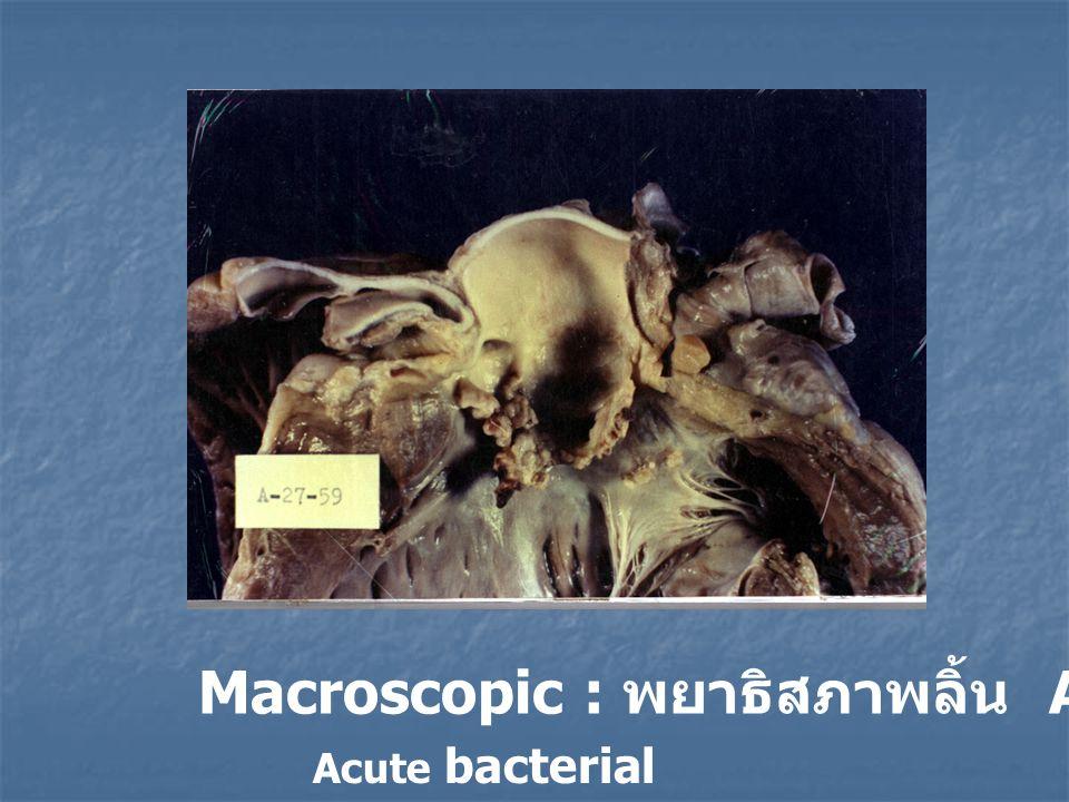 Macroscopic : พยาธิสภาพลิ้น Aortic Valve Acute bacterial vegetative endocarditis