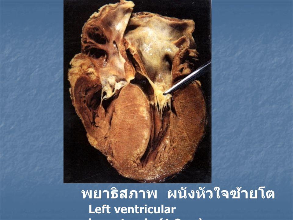 พยาธิสภาพ ผนังหัวใจซ้ายโต Left ventricular hypertrophy(1.8cm)