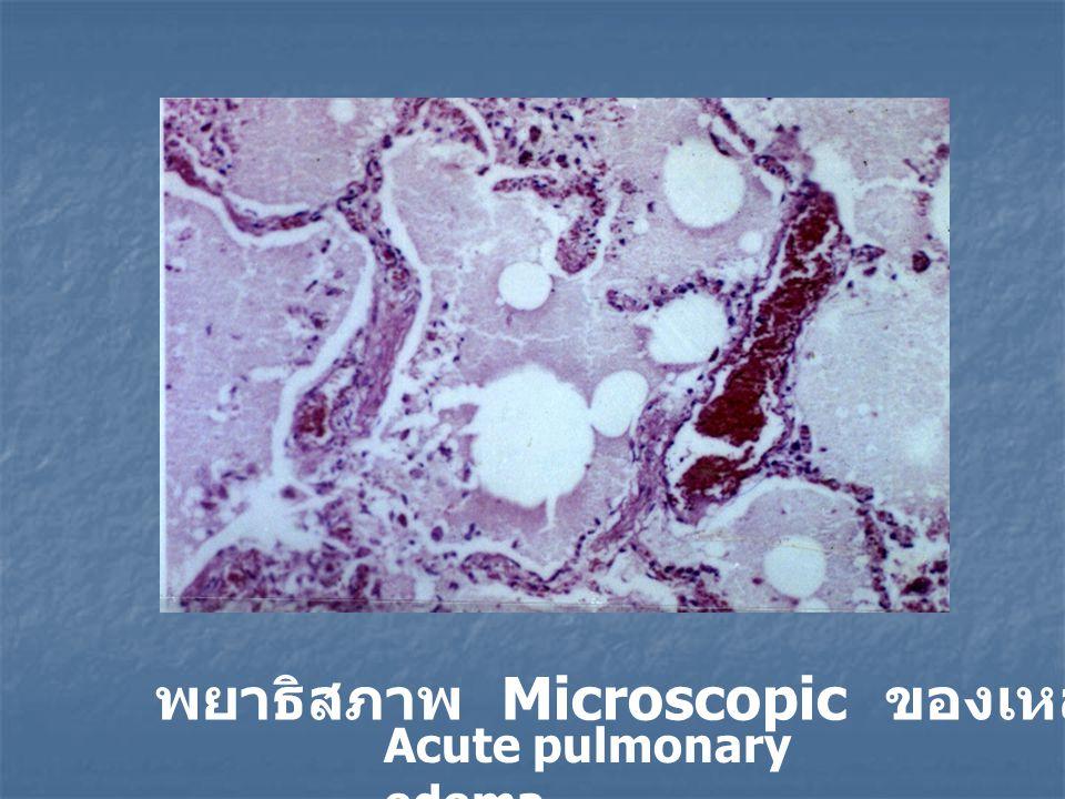 พยาธิสภาพ Microscopic ของเหลวในถุงลมปอด Acute pulmonary edema