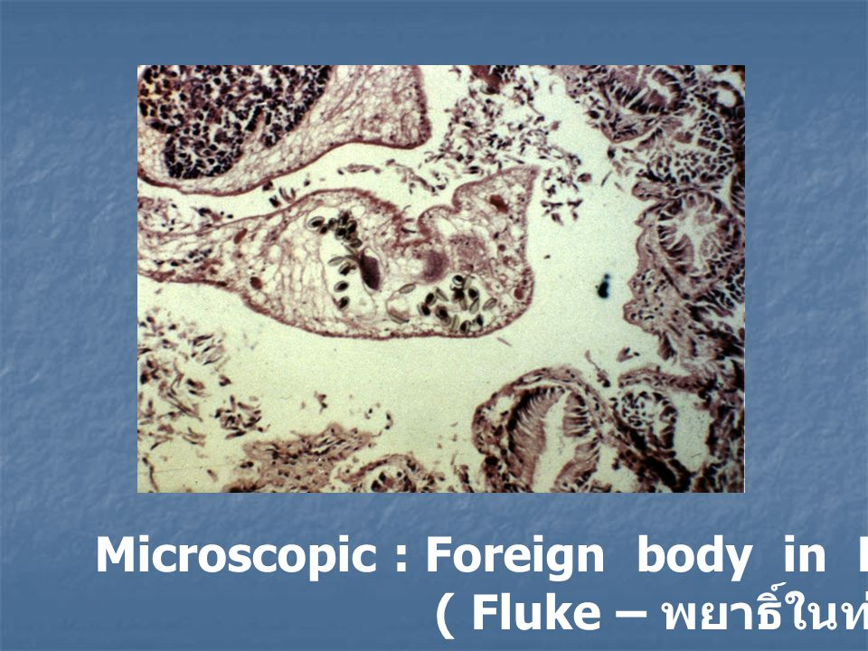 Microscopic : Foreign body in Hepatic bile duct ( Fluke – พยาธิ์ในท่อน้ำดีตับ )