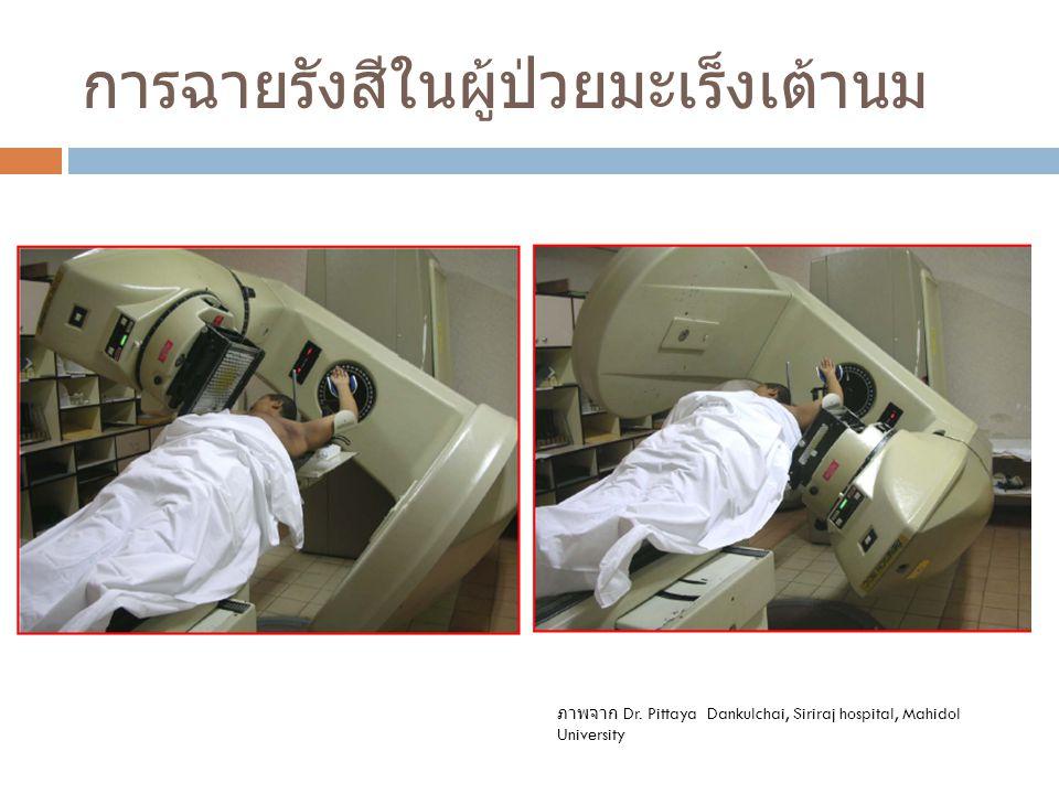 การฉายรังสีในผู้ป่วยมะเร็งเต้านม ภาพจาก Dr. Pittaya Dankulchai, Siriraj hospital, Mahidol University