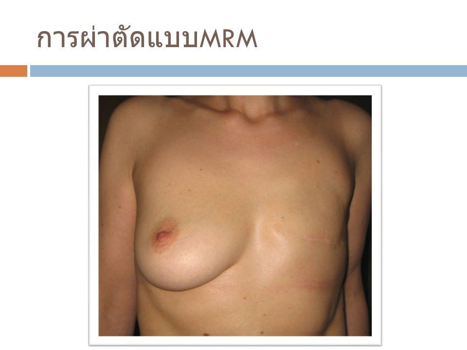 การผ่าตัดแบบ MRM