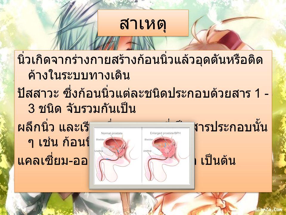 อาการ อาการสำคัญที่เกิดจากก้อนนิ่วอุดตันในทางเดิน ปัสสาวะ ได้แก่ อาการปวดท้องบริเวณเอวหรือสีข้าง ลักษณะปวดบิดหรือปวดแน่นเป็นระยะ ๆ อย่างรุนแรง ในบางคนอาจปวดร้าวมาที่ท้อง น้อย อัณฑะ หรือต้นขาด้วย อาการปวดนี้เกิด จากก้อนนิ่วอุดตันทำให้น้ำปัสสาวะคั่งอยู่ใน ท่อที่อยู่เหนือการอุดตันนั้น มีผลทำให้เกิดท่อ ไตโป่งพอง ไตบวม และ ปวดตรงเอวจากไตบวมนี้ อาการสำคัญที่เกิดจากก้อนนิ่วอุดตันในทางเดิน ปัสสาวะ ได้แก่ อาการปวดท้องบริเวณเอวหรือสีข้าง ลักษณะปวดบิดหรือปวดแน่นเป็นระยะ ๆ อย่างรุนแรง ในบางคนอาจปวดร้าวมาที่ท้อง น้อย อัณฑะ หรือต้นขาด้วย อาการปวดนี้เกิด จากก้อนนิ่วอุดตันทำให้น้ำปัสสาวะคั่งอยู่ใน ท่อที่อยู่เหนือการอุดตันนั้น มีผลทำให้เกิดท่อ ไตโป่งพอง ไตบวม และ ปวดตรงเอวจากไตบวมนี้