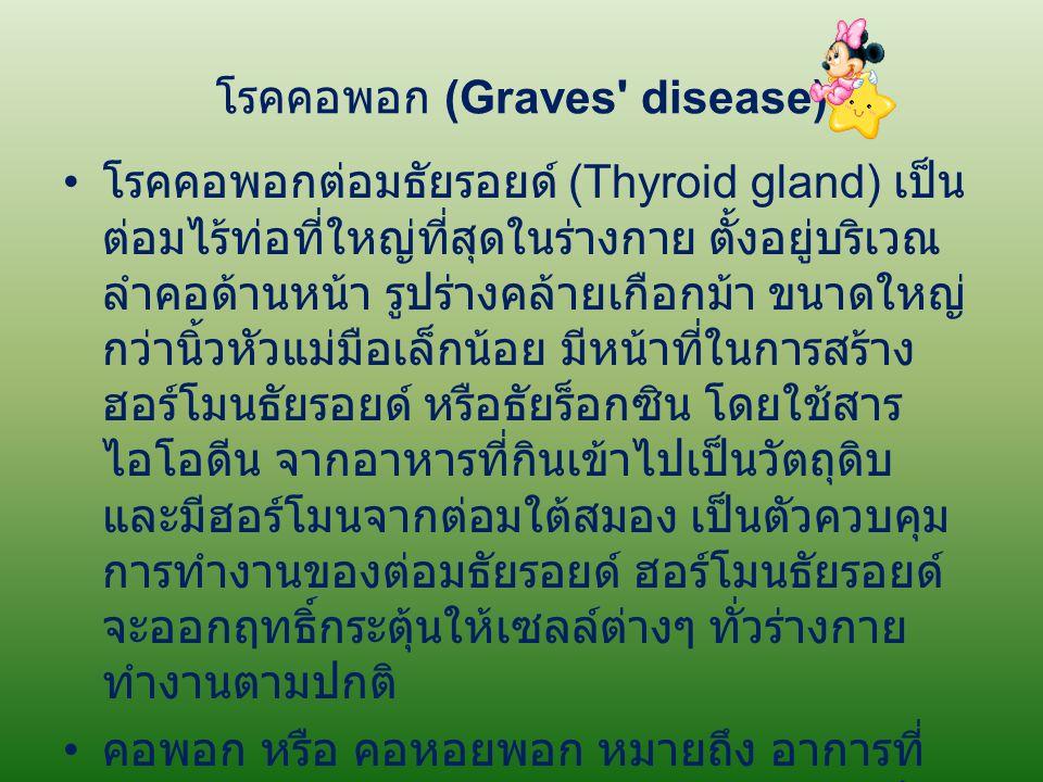 โรคคอพอก (Graves' disease) โรคคอพอกต่อมธัยรอยด์ (Thyroid gland) เป็น ต่อมไร้ท่อที่ใหญ่ที่สุดในร่างกาย ตั้งอยู่บริเวณ ลำคอด้านหน้า รูปร่างคล้ายเกือกม้า
