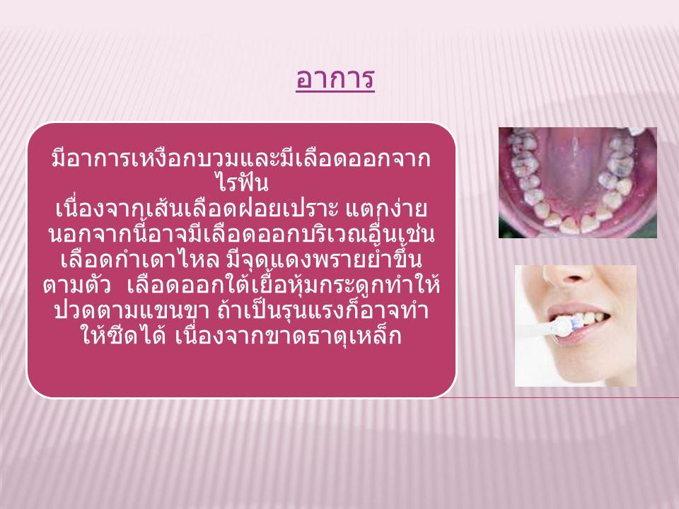 เกิดจากการขาดวิตามินซีเป็นองค์ประกอบ สำคัญในการสร้างคอลลาเจน (collagen) ซึ่ง เป็นส่วนสำคัญของผิวหนัง หลอดเลือดและ กระดูก เมื่อขาดคอลลาเจนทำให้เส้นเลือ